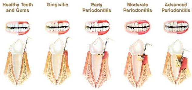 Classification-Periodontal-Disease-Izunpharma