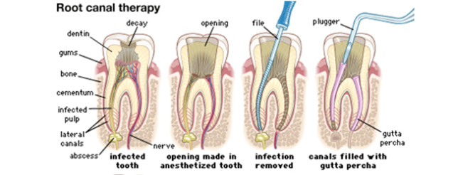 rootcanal-637x246